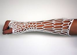 3d printing in healthcare